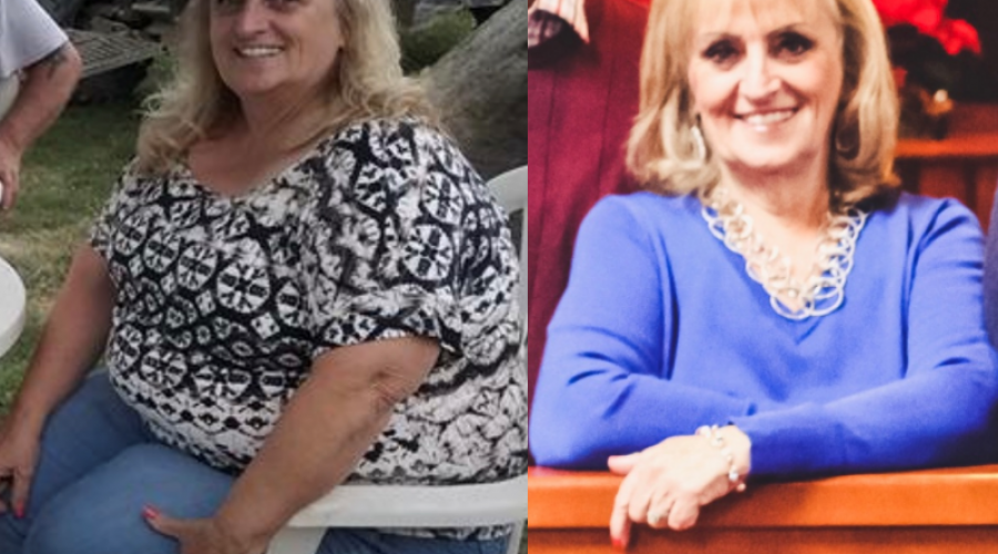 Vickie's Openness About Weight Loss Surgery Will Definitely Inspire You!